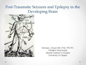 PostTraumatic Seizures and Epilepsy in the Developing Brain