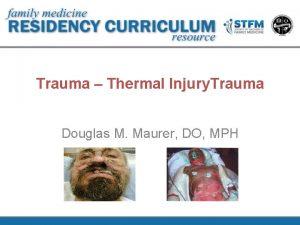 Trauma Thermal Injury Trauma Douglas M Maurer DO