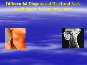 Differential Diagnosis of Head and Neck Swellings and