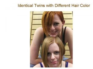 Identical Twins with Different Hair Color What is