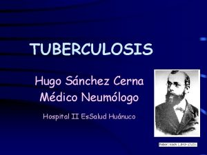 TUBERCULOSIS Hugo Snchez Cerna Mdico Neumlogo Hospital II