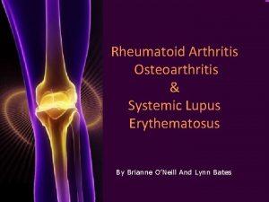 Rheumatoid Arthritis Osteoarthritis Systemic Lupus Erythematosus By Brianne