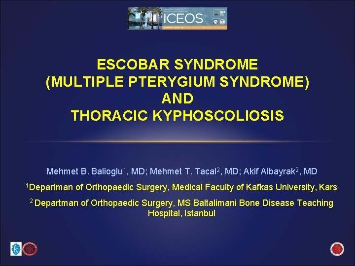ESCOBAR SYNDROME MULTIPLE PTERYGIUM SYNDROME AND THORACIC KYPHOSCOLIOSIS