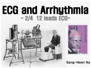 ECG and Arrhythmia 24 12 leads ECG SangHoon
