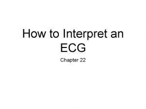 How to Interpret an ECG Chapter 22 ECG