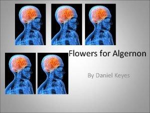 Flowers for Algernon By Daniel Keyes About Daniel