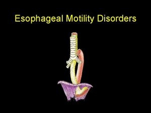 Esophageal Motility Disorders Esophageal Motility Dz Esophageal Disorders