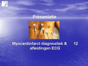 Presentatie Myocardinfarct diagnostiek afleidingen ECG 12 Doelstelling presentatie
