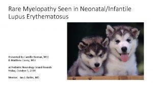 Rare Myelopathy Seen in NeonatalInfantile Lupus Erythematosus Presented