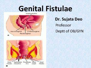 Genital Fistulae Dr Sujata Deo Professor Deptt of