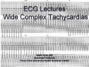 ECG Lectures Wide Complex Tachycardias Selim Krim MD