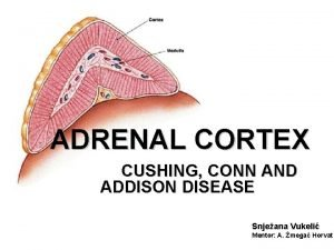ADRENAL CORTEX CUSHING CONN AND ADDISON DISEASE Snjeana