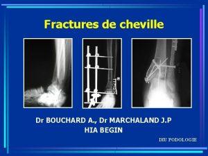 Fractures de cheville Dr BOUCHARD A Dr MARCHALAND