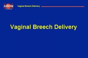 Vaginal Breech Delivery International Vaginal Breech Delivery Vaginal