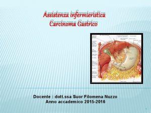 Assistenza infermieristica Carcinoma Gastrico Docente dott ssa Suor