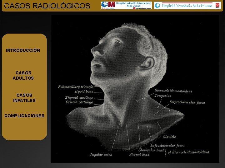 CASOS RADIOLGICOS INTRODUCCIN CASOS ADULTOS CASOS INFATILES COMPLICACIONES
