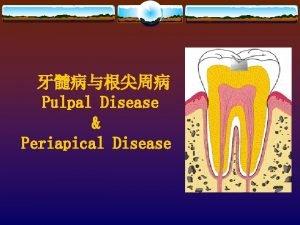 Pulpal Disease Periapical Disease Causes v Bacterial factors
