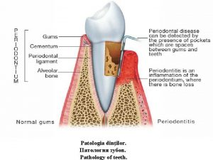 Patologia dinilor Pathology of teeth Tema Patologia dinilor