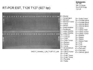 RTPCR EST T 126 T 127 927 bp