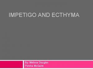 IMPETIGO AND ECTHYMA By Melissa Douglas Porsha Mc