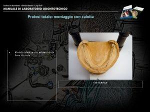 Protesi totale montaggio con calotta Modello inferiore con