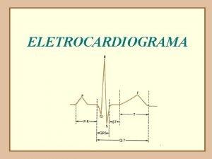 ELETROCARDIOGRAMA O ciclo cardaco PRINCPIO DE UM REGISTRO