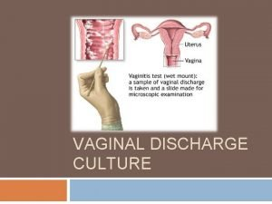 VAGINAL DISCHARGE CULTURE Specimen processing for Vaginal swab