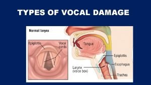 TYPES OF VOCAL DAMAGE When the vocal folds
