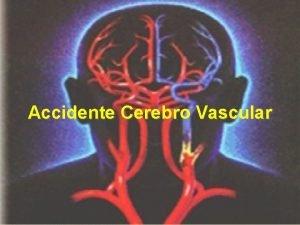 Accidente Cerebro Vascular CEREBRO Funciones Sensoriales motoras y