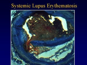Systemic Lupus Erythematosis The Immune System Immunology Connection