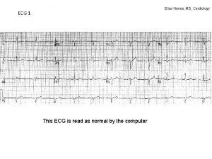 Elias Hanna MD Cardiology ECG 1 This ECG