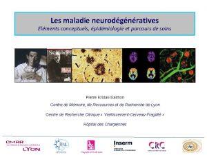 Les maladie neurodgnratives Elments conceptuels pidmiologie et parcours