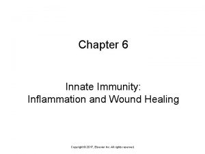 Chapter 6 Innate Immunity Inflammation and Wound Healing
