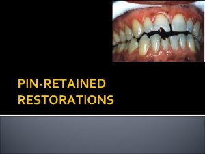 PINRETAINED RESTORATIONS EXTENSIVELY DAMAGED TEETH Extensively damaged teeth