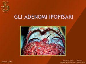 GLI ADENOMI IPOFISARI Definizione Gli adenomi ipofisari AI