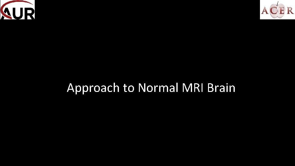 Approach to Normal MRI Brain MRI Sequences T