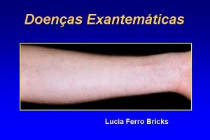 Doenas Exantemticas Lucia Ferro Bricks Varola DNA vrus