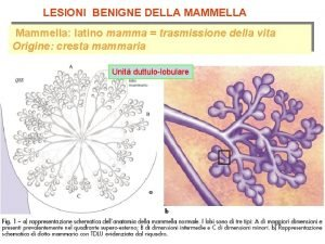 LESIONI BENIGNE DELLA MAMMELLA Mammella latino mamma trasmissione