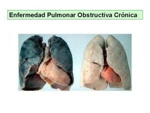Enfermedad Pulmonar Obstructiva Crnica Enfermedad Pulmonar Obstructiva Crnica
