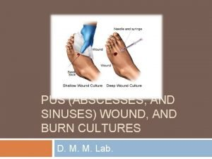 PUS ABSCESSES AND SINUSES WOUND AND BURN CULTURES