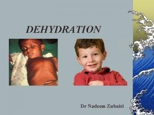 DEHYDRATION Dr Nadeem Zubairi Dehydration 2 million infants