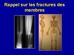 Rappel sur les fractures des membres DS LARRIVE
