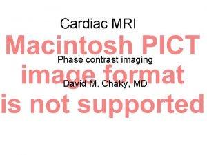Cardiac MRI Phase contrast imaging David M Chaky