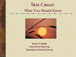 Skin Cancer What You Should Know Randy R