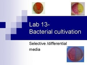 Lab 13 Bacterial cultivation Selective differential media Lab