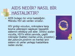 AIDS NEDR NASIL BR HASTALIKTIR n AIDS bulac