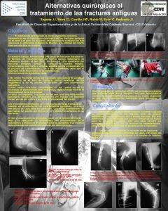 Alternativas quirrgicas al tratamiento de las fracturas antiguas