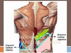 HERNIAS DE LA PARED POSTERIOR Dr Medrano MI
