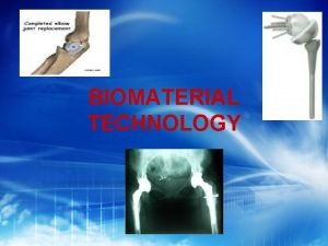 BIOMATERIAL TECHNOLOGY CONTENT What is biomaterial Historical development