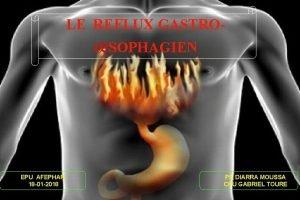 LE REFLUX GASTRO SOPHAGIEN EPU AFEPHAR 18 01